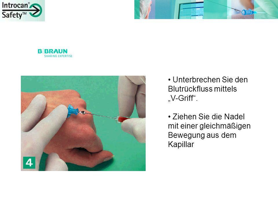 Unterbrechen Sie den Blutrückfluss mittels V-Griff. Ziehen Sie die Nadel mit einer gleichmäßigen Bewegung aus dem Kapillar