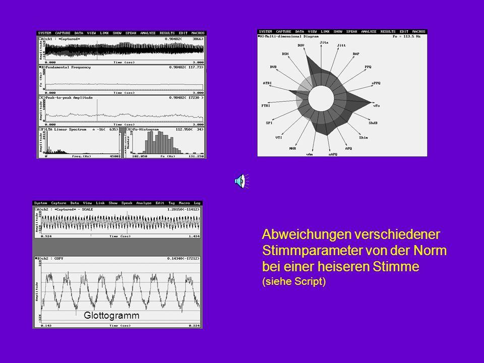 Glottogramm Abweichungen verschiedener Stimmparameter von der Norm bei einer heiseren Stimme (siehe Script)