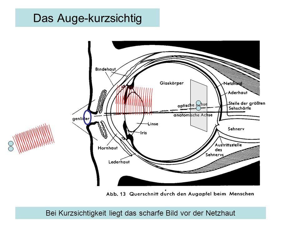 Das Auge – kurzsichtig, korrigiert mit Brille Eine Zerstreuungslinse korrigiert den Strahlengang, indem sie die Winkel vor dem Auge aufweitet: Das scharfe Bild rückt nach hinten auf die Netzhaut