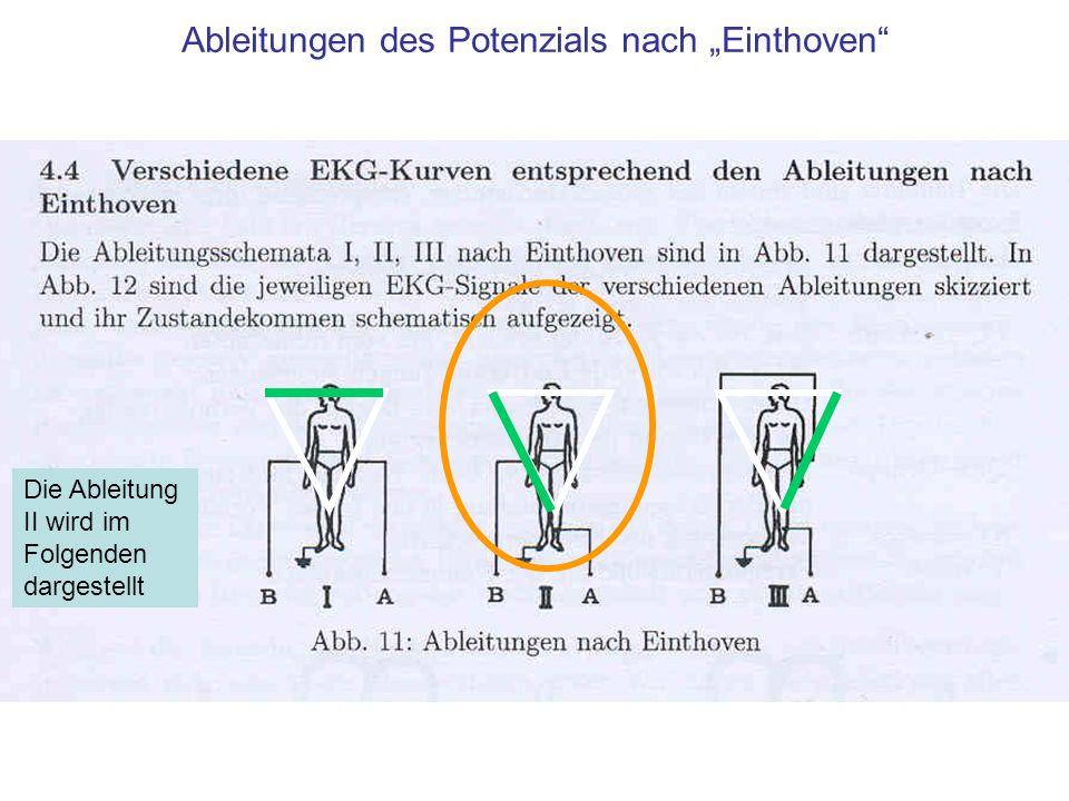 Schema einer realistischen EKG Aufzeichnung Die Ableitungen nach Eindhofenzeigen die Projektion der vom Herzen erzeugten Potentiale auf die Seiten eines gleichseitigen Dreiecks Die Ableitung II wird im Folgenden dargestellt