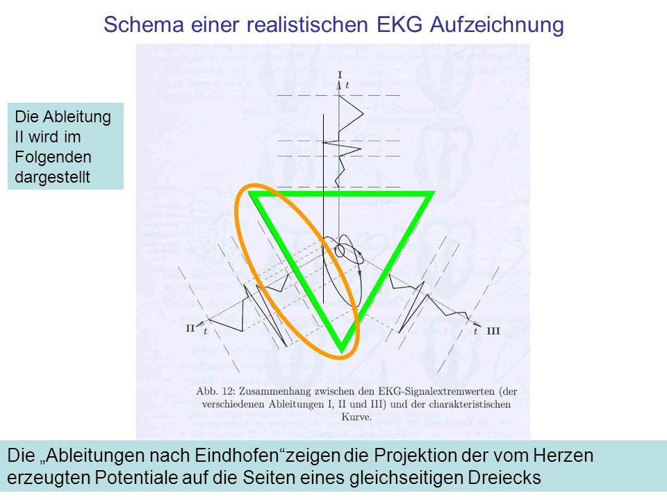 Schema einer realistischen EKG Aufzeichnung Die Ableitungen nach Eindhofenzeigen die Projektion der vom Herzen erzeugten Potentiale auf die Seiten ein