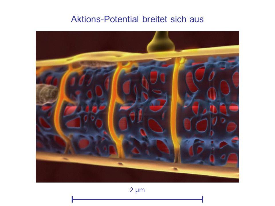 Die Sarkomere verkürzen sich: Der Muskel zieht sich zusammen 2 µm