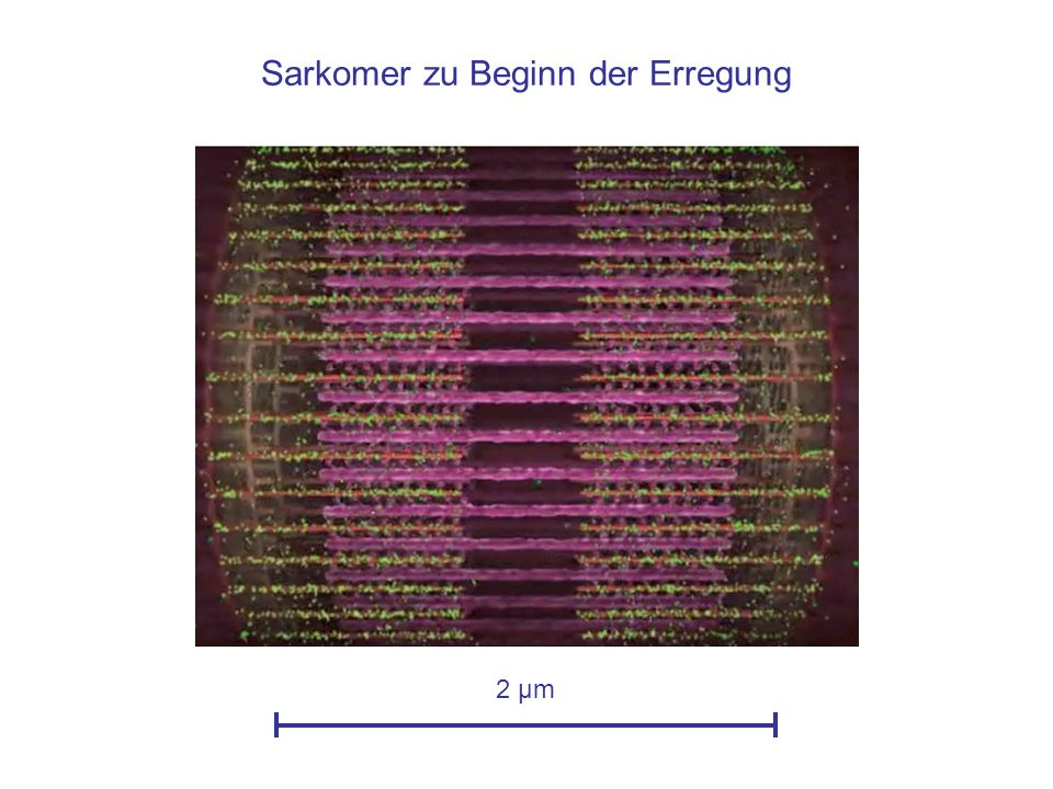 Sarkomer zu Beginn der Erregung 2 µm