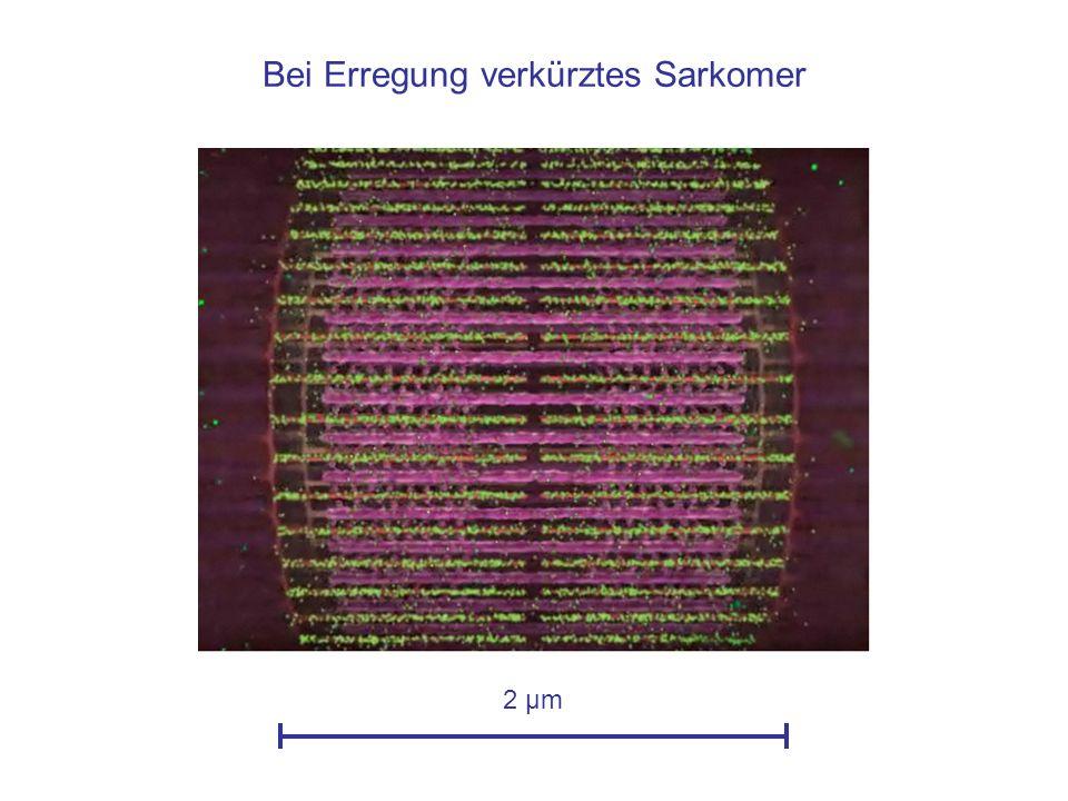 Bei Erregung verkürztes Sarkomer 2 µm