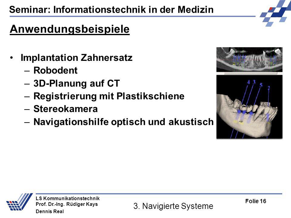 Seminar: Informationstechnik in der Medizin Folie 16 LS Kommunikationstechnik Prof. Dr.-Ing. Rüdiger Kays Dennis Real 3. Navigierte Systeme Anwendungs