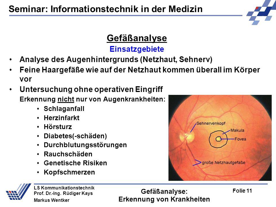 Seminar: Informationstechnik in der Medizin Folie 11 LS Kommunikationstechnik Prof.