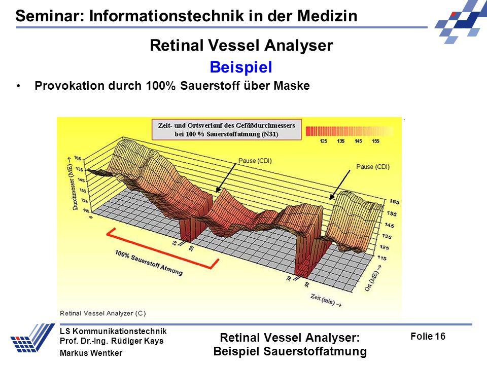 Seminar: Informationstechnik in der Medizin Folie 16 LS Kommunikationstechnik Prof.