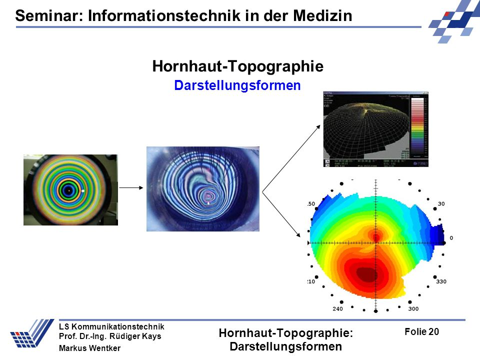 Seminar: Informationstechnik in der Medizin Folie 20 LS Kommunikationstechnik Prof.