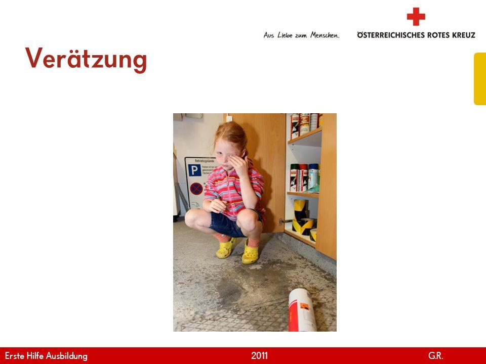 www.roteskreuz.at Version April   2011 Erste Hilfe bei Verätzung 101 Erste Hilfe Ausbildung 2011 G.R.