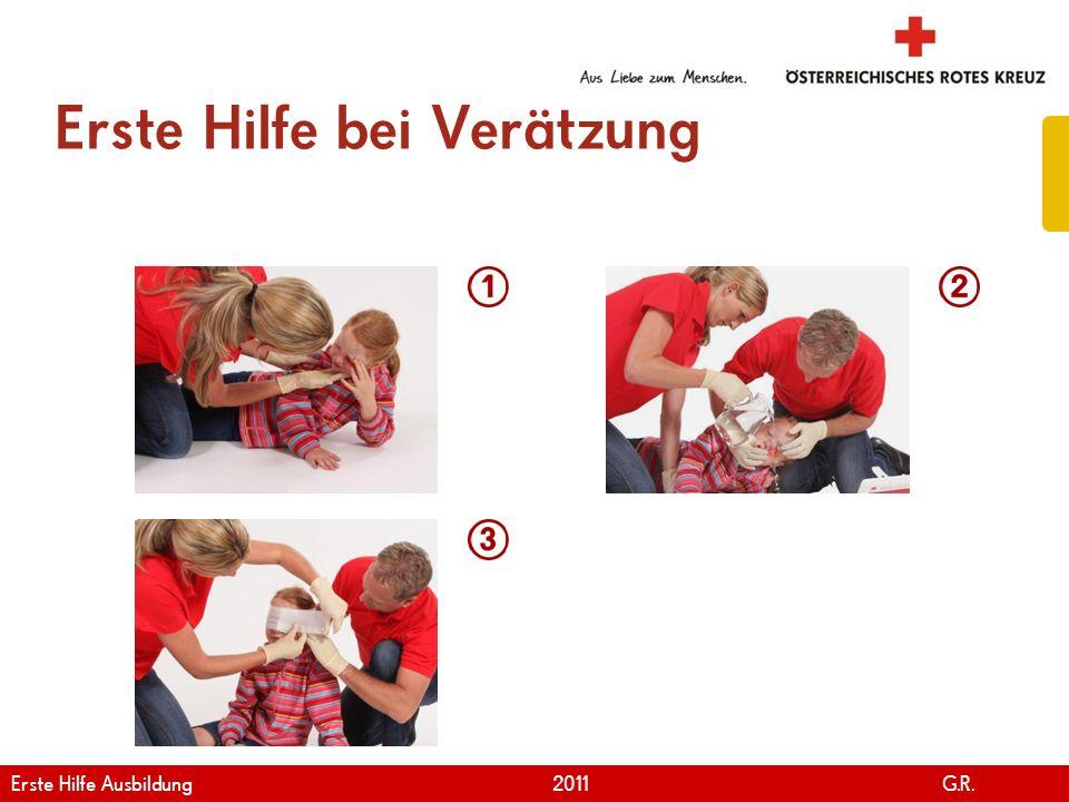 www.roteskreuz.at Version April | 2011 Erste Hilfe bei Verätzung 101 Erste Hilfe Ausbildung 2011 G.R.