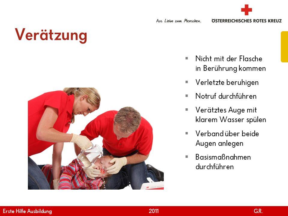 www.roteskreuz.at Version April | 2011 Verätzung 102 Nicht mit der Flasche in Berührung kommen Verletzte beruhigen Notruf durchführen Verätztes Auge m