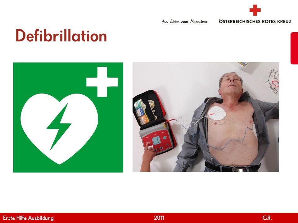 www.roteskreuz.at Version April   2011 Atem-Kreislauf-Stillstand 40 Notfallcheck durchführen Notruf wählen 30 Herzdruckmassagen und 2 Beatmungen Den Anweisungen des Defibrillators folgen Erste Hilfe Ausbildung 2011 G.R.