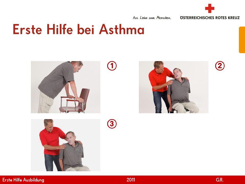 www.roteskreuz.at Version April   2011 Asthmaanfall 58 Ruhe bewahren Notruf durchführen Erkrankten hinsetzen Zu langsamer, tiefer Ausatmung anregen Basismaßnahmen durchführen Erste Hilfe Ausbildung 2011 G.R.