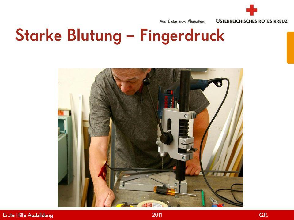 www.roteskreuz.at Version April   2011 Fingerdruck bei starker Blutung 71 Erste Hilfe Ausbildung 2011 G.R.