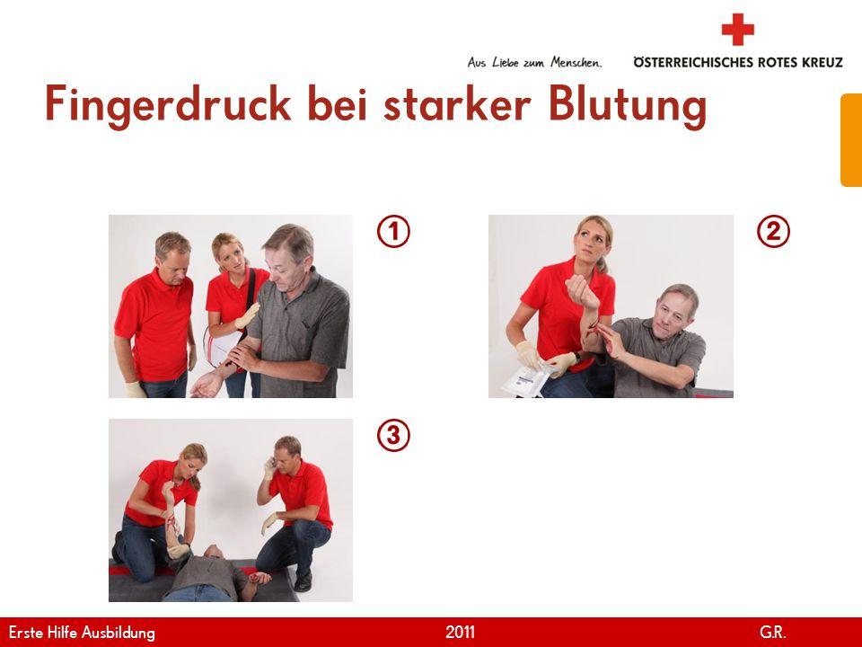 www.roteskreuz.at Version April | 2011 Fingerdruck bei starker Blutung 71 Erste Hilfe Ausbildung 2011 G.R.