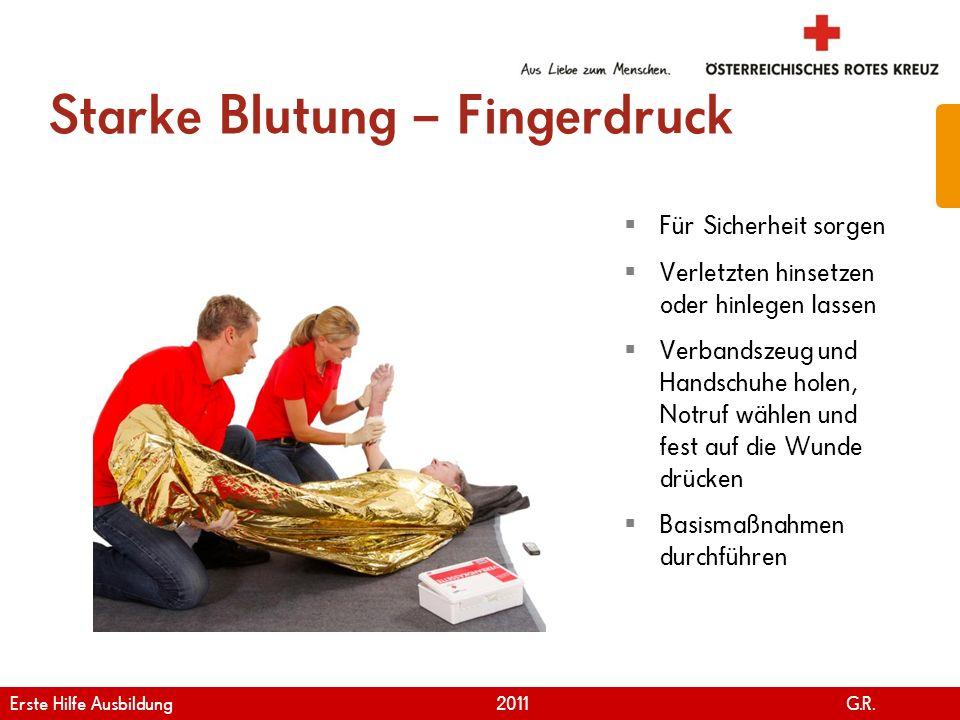 www.roteskreuz.at Version April | 2011 Starke Blutung – Fingerdruck 72 Für Sicherheit sorgen Verletzten hinsetzen oder hinlegen lassen Verbandszeug un