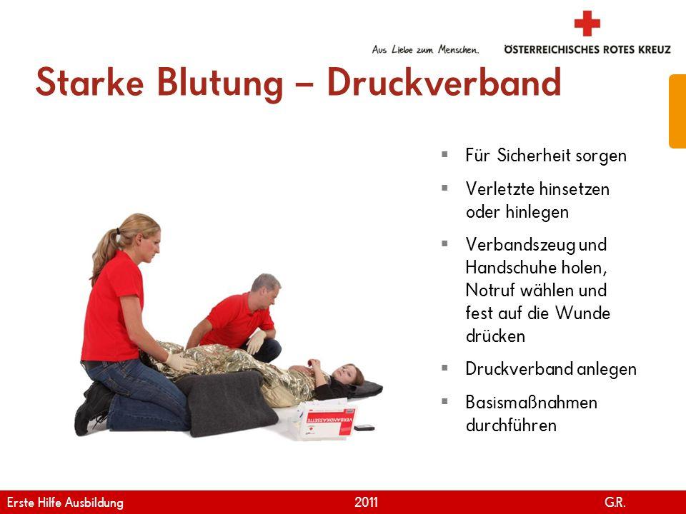 www.roteskreuz.at Version April | 2011 Starke Blutung – Druckverband 75 Für Sicherheit sorgen Verletzte hinsetzen oder hinlegen Verbandszeug und Hands
