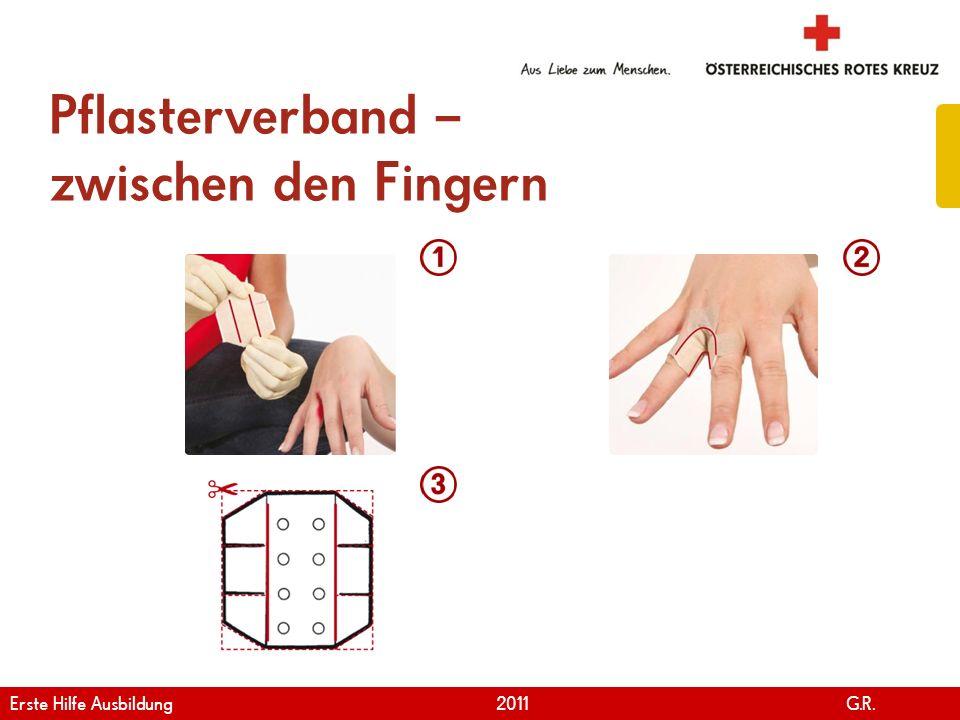 www.roteskreuz.at Version April | 2011 Pflasterverband – zwischen den Fingern 79 Erste Hilfe Ausbildung 2011 G.R.