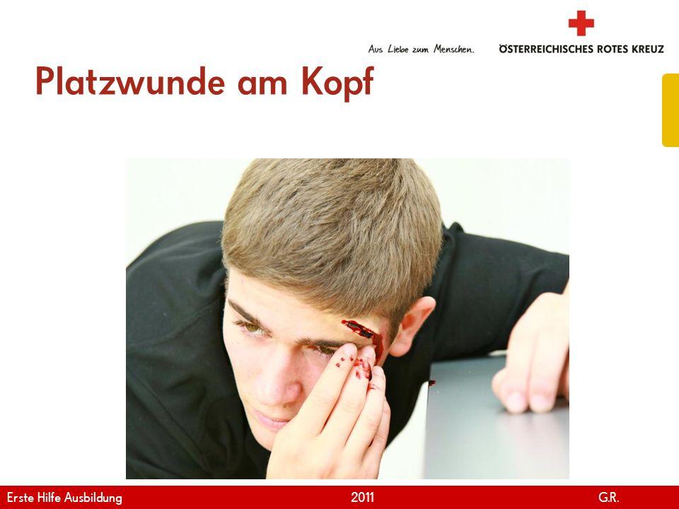 www.roteskreuz.at Version April | 2011 Platzwunde am Kopf 82 Erste Hilfe Ausbildung 2011 G.R.