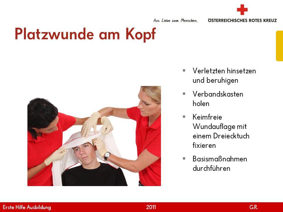 www.roteskreuz.at Version April | 2011 Platzwunde am Kopf 84 Verletzten hinsetzen und beruhigen Verbandskasten holen Keimfreie Wundauflage mit einem D