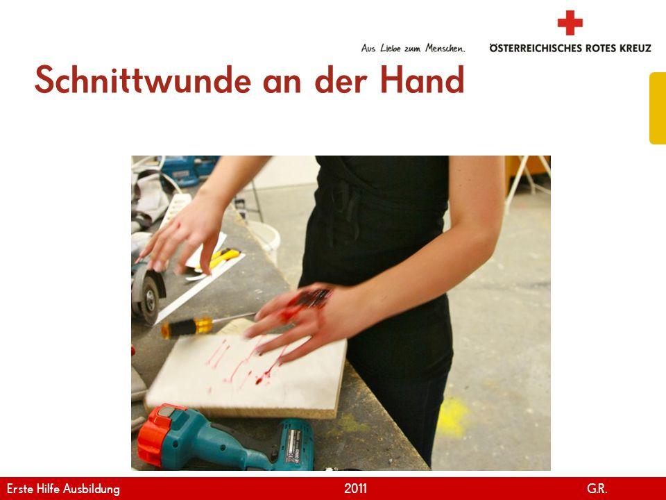 www.roteskreuz.at Version April | 2011 Schnittwunde an der Hand 85 Erste Hilfe Ausbildung 2011 G.R.