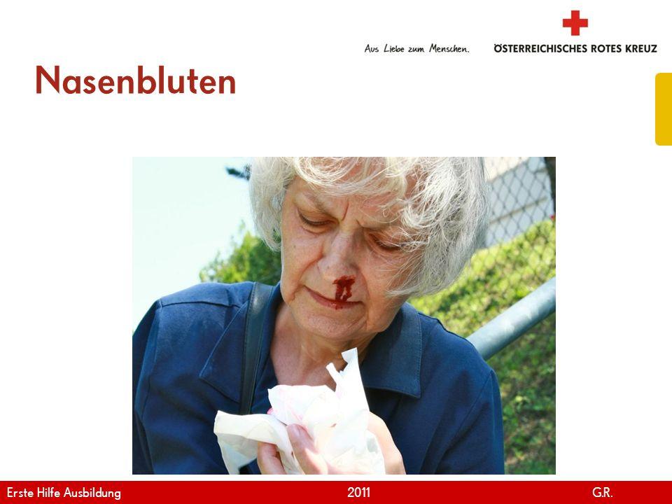 www.roteskreuz.at Version April | 2011 Nasenbluten 91 Erste Hilfe Ausbildung 2011 G.R.