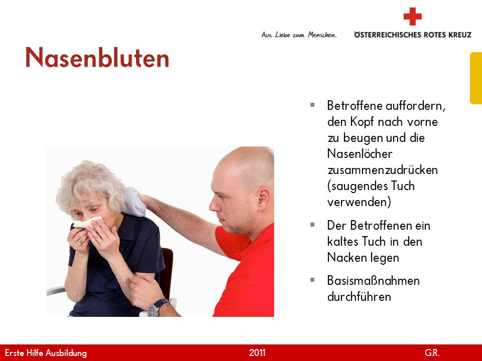 www.roteskreuz.at Version April | 2011 Nasenbluten 92 Betroffene auffordern, den Kopf nach vorne zu beugen und die Nasenlöcher zusammenzudrücken (saug