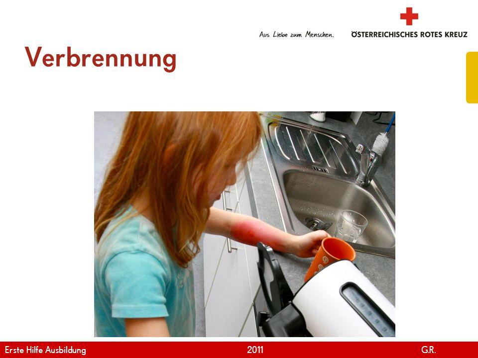 www.roteskreuz.at Version April   2011 Erste Hilfe bei Verbrennung 98 Erste Hilfe Ausbildung 2011 G.R.