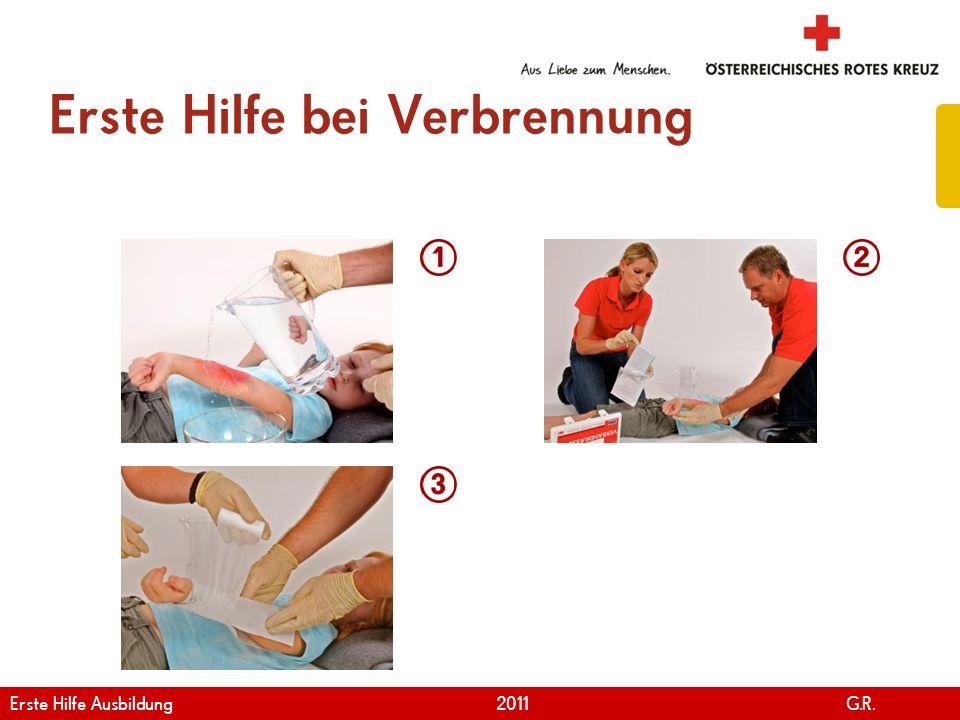 www.roteskreuz.at Version April | 2011 Erste Hilfe bei Verbrennung 98 Erste Hilfe Ausbildung 2011 G.R.