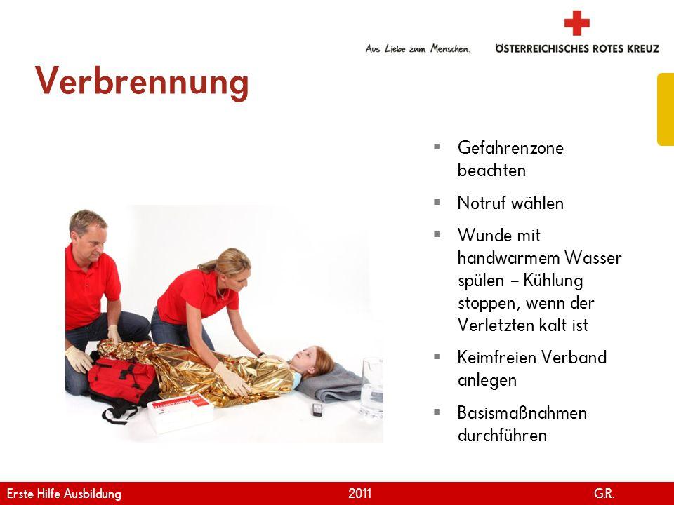 www.roteskreuz.at Version April | 2011 Verbrennung 99 Gefahrenzone beachten Notruf wählen Wunde mit handwarmem Wasser spülen – Kühlung stoppen, wenn d