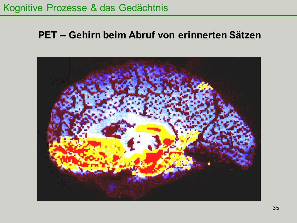 35 Kognitive Prozesse & das Gedächtnis PET – Gehirn beim Abruf von erinnerten Sätzen