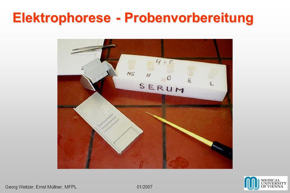 Elektrophorese - Probenvorbereitung Georg Weitzer, Ernst Müllner, MFPL 01/2007