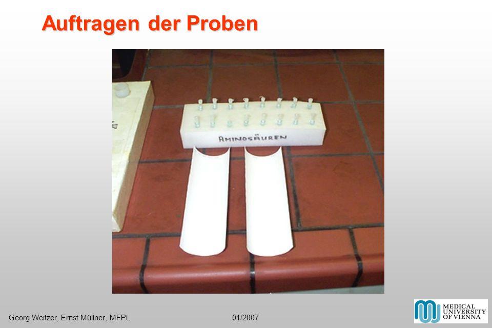 Fotos: Gelfiltration-Auswertung neu fertige Aminosäure-Dünnschicht neue Ausdrucke Densitometer Foto Lageplan Foto Med.