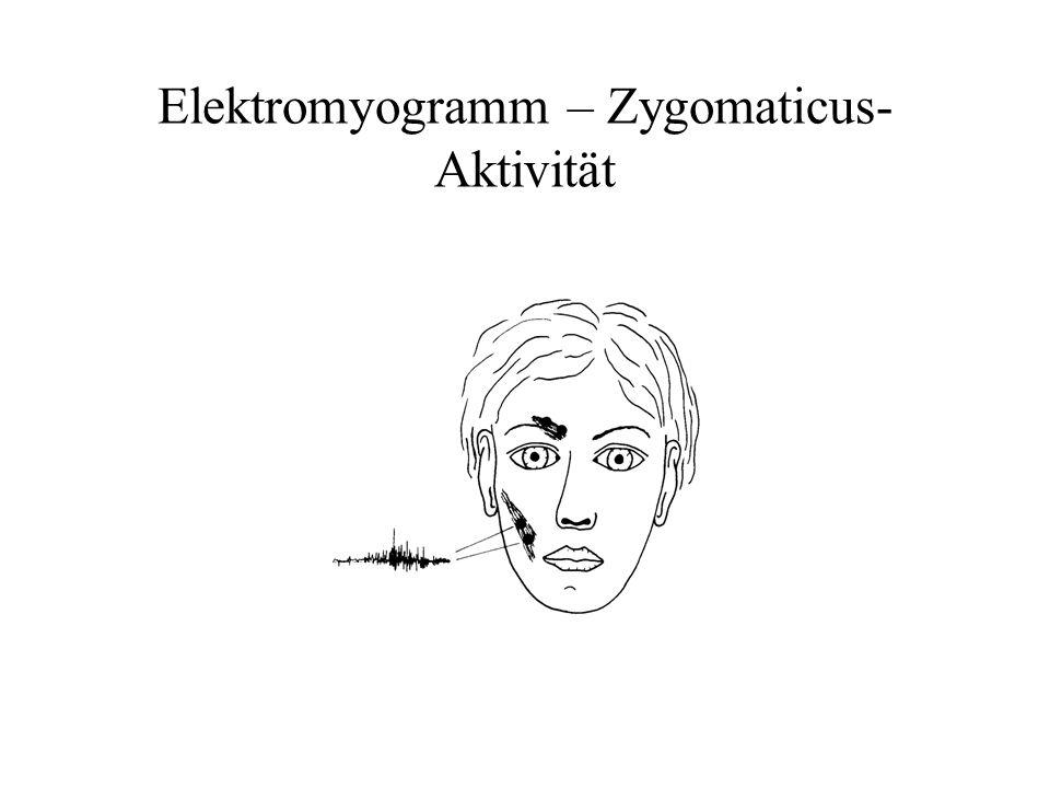 Elektromyogramm – Zygomaticus- Aktivität
