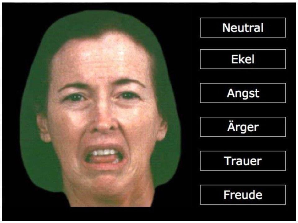 Anwendung - Beispiele Bipolar I + II (Derntl et al., 2009) (VERT-K, VIEMER): signifikant schlechtere Wiedererkennung in Bipolar I Hormonelle Einflüsse auf Emotionswiederekennung bei Frauen (Derntl et al., 2008) Weitere Daten: Schizophrenie Affektive Störungen