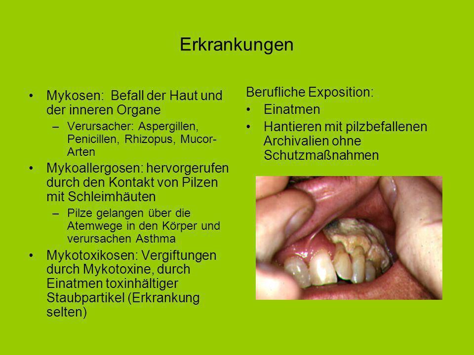 Erkrankungen Mykosen: Befall der Haut und der inneren Organe –Verursacher: Aspergillen, Penicillen, Rhizopus, Mucor- Arten Mykoallergosen: hervorgerufen durch den Kontakt von Pilzen mit Schleimhäuten –Pilze gelangen über die Atemwege in den Körper und verursachen Asthma Mykotoxikosen: Vergiftungen durch Mykotoxine, durch Einatmen toxinhältiger Staubpartikel (Erkrankung selten) Berufliche Exposition: Einatmen Hantieren mit pilzbefallenen Archivalien ohne Schutzmaßnahmen