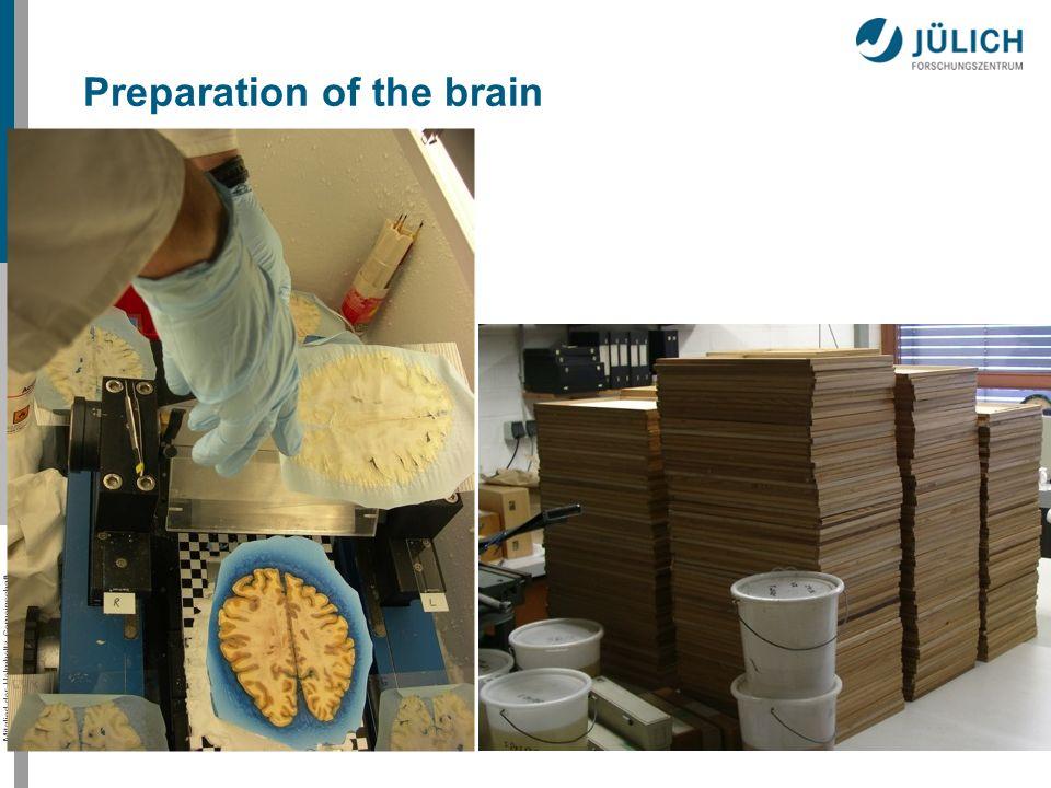 Mitglied der Helmholtz-Gemeinschaft Preparation of the brain