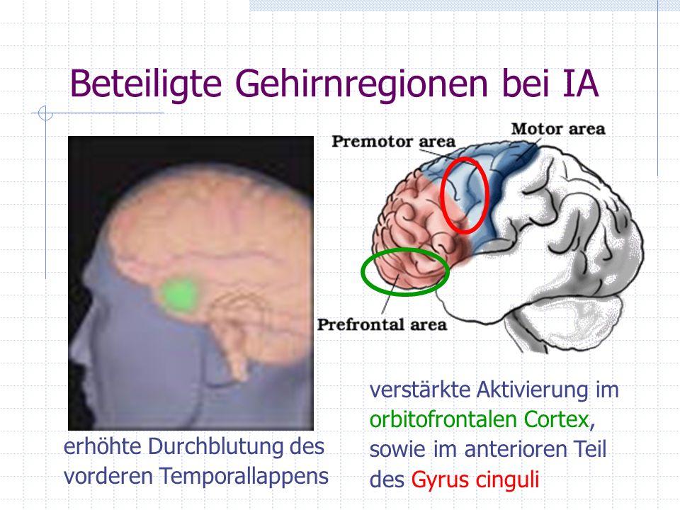 Beteiligte Gehirnregionen bei IA verstärkte Aktivierung im orbitofrontalen Cortex, sowie im anterioren Teil des Gyrus cinguli erhöhte Durchblutung des