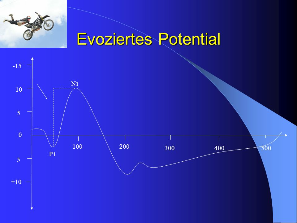 Evoziertes Potential 100200 300400500 0 5 10 -15 5 +10 N1N1 P1P1