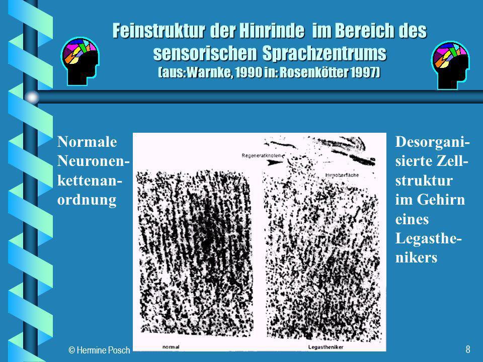 © Hermine Posch 8 Feinstruktur der Hinrinde im Bereich des sensorischen Sprachzentrums (aus: Warnke, 1990 in: Rosenkötter 1997) Normale Neuronen- kett
