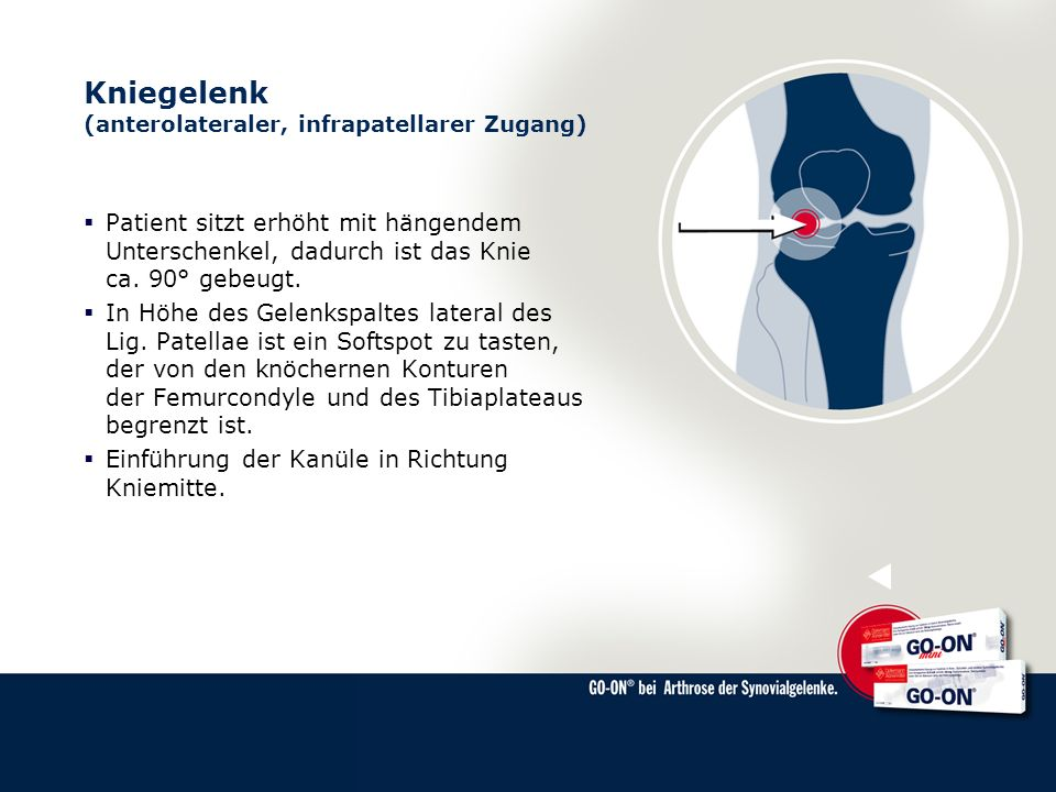Kniegelenk (anterolateraler, infrapatellarer Zugang) Patient sitzt erhöht mit hängendem Unterschenkel, dadurch ist das Knie ca. 90° gebeugt. In Höhe d