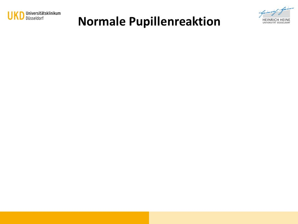 Normale Pupillenreaktion