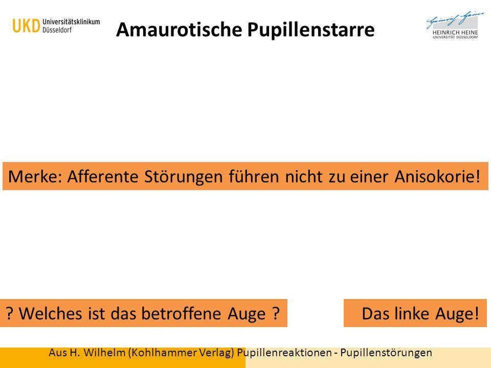 Aus H. Wilhelm (Kohlhammer Verlag) Pupillenreaktionen - Pupillenstörungen Amaurotische Pupillenstarre ? Welches ist das betroffene Auge ? Das linke Au