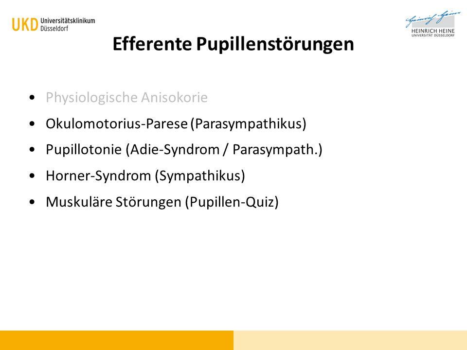 Efferente Pupillenstörungen Physiologische Anisokorie Okulomotorius-Parese (Parasympathikus) Pupillotonie (Adie-Syndrom / Parasympath.) Horner-Syndrom