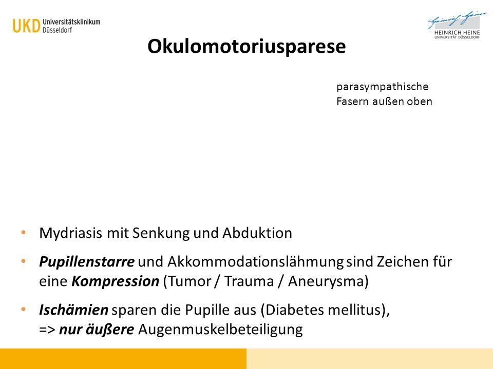 Okulomotoriusparese Mydriasis mit Senkung und Abduktion Pupillenstarre und Akkommodationslähmung sind Zeichen für eine Kompression (Tumor / Trauma / A