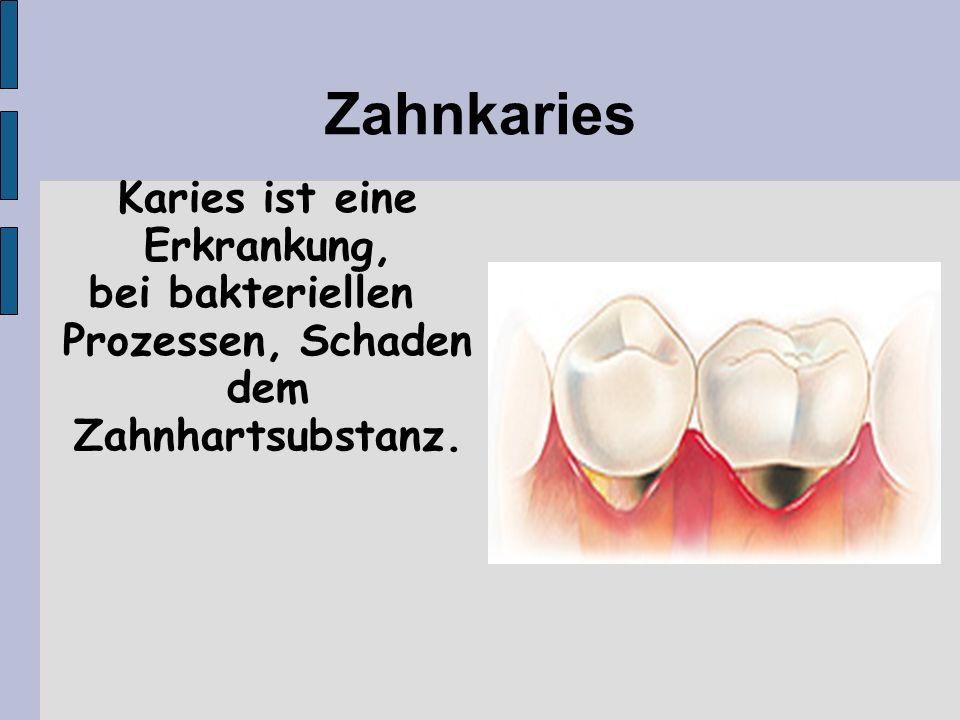 Zahnkaries Karies ist eine Erkrankung, bei bakteriellen Prozessen, Schaden dem Zahnhartsubstanz.