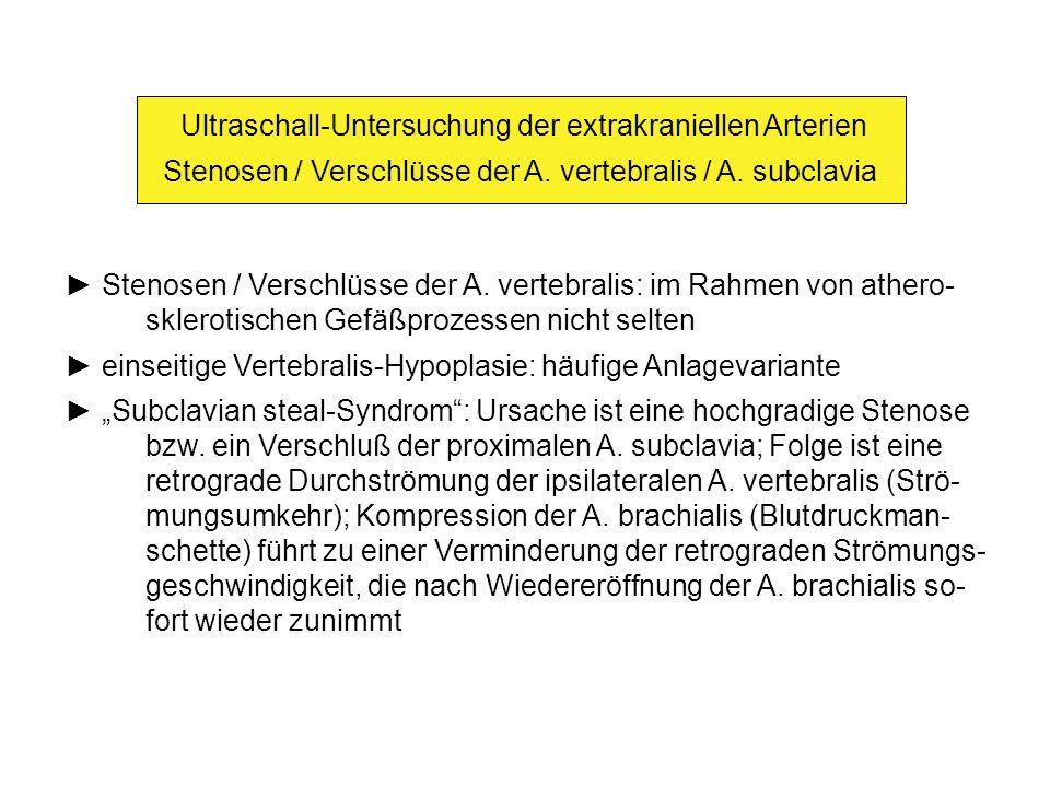 Ultraschall-Untersuchung der extrakraniellen Arterien Stenosen / Verschlüsse der A.