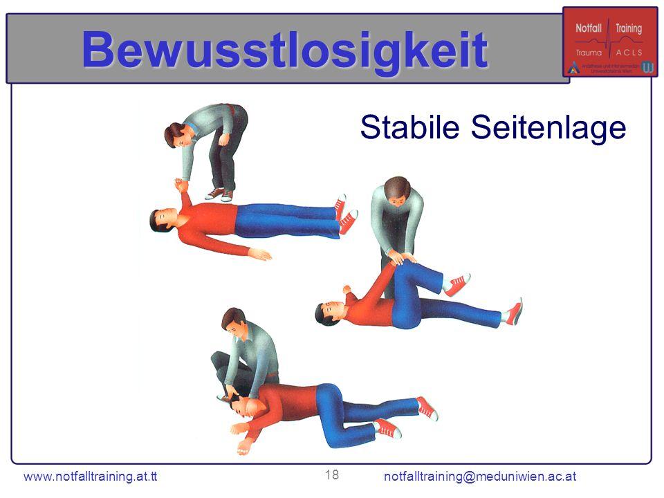 www.notfalltraining.at.tt notfalltraining@meduniwien.ac.at 18 Bewusstlosigkeit Stabile Seitenlage