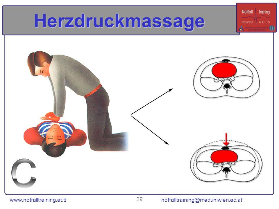 www.notfalltraining.at.tt notfalltraining@meduniwien.ac.at 29 Herzdruckmassage