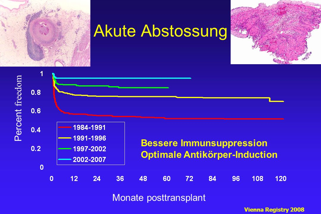 Akute Abstossung Monate posttransplant Percent freedom Vienna Registry 2008 Bessere Immunsuppression Optimale Antikörper-Induction
